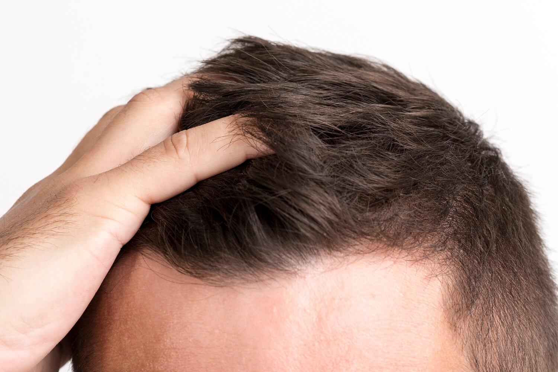 Przeszczep włosów - dlaczego jest konieczny?